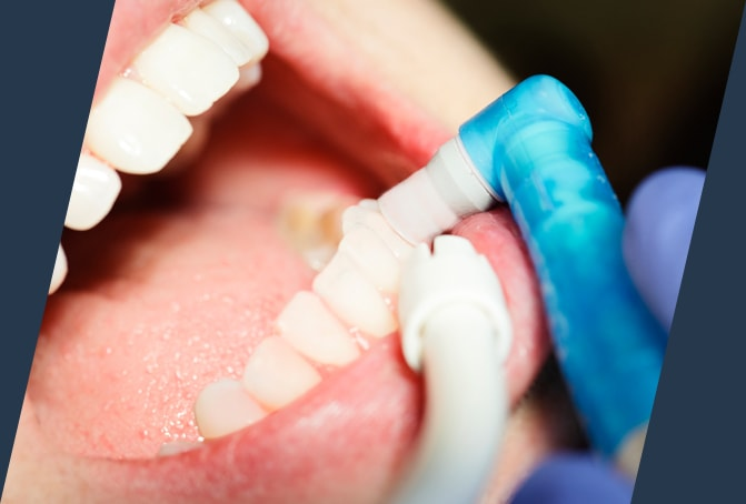 tooth removal in Leesburg